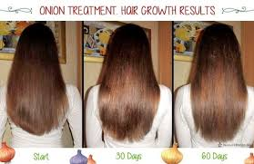 for hair juice for hair loss alopecia trendy hairstyles in the usa