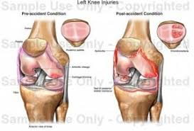 Knees Anatomy Human Anatomy Left Knee Anatomy Pain Ligaments Diagram Most