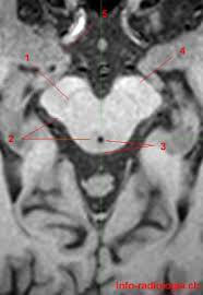 Sagittal Brain Mri Anatomy Midbrain