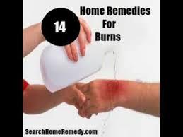 Home Remedies For Small Burns - 17 beste ideeën over home remedies for burns op pinterest zure