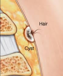 pilonidal cyst location pilonidal cyst pictures surgery removal treatment