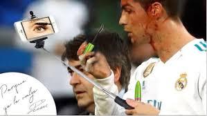 Memes De Cristiano Ronaldo - los memes de cristiano ronaldo tras su golpe en la cabeza