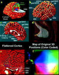 Cortical Blindness May Result From The Destruction Of Dynamics Of Gray Matter Loss In Alzheimer U0027s Disease Journal Of