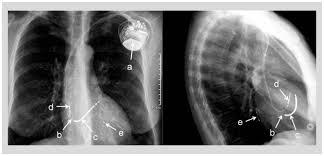 pacemaker chambre défibrillateur automatique implantable dai principes de base