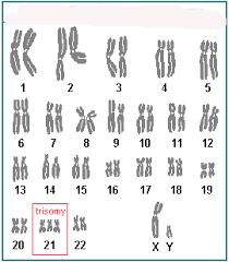 Chromosome Color Blindness Quia 9ap Chapter 15 The Chromosomal Basis Of Inheritance