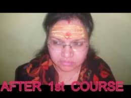 Night Blindness Information Night Blindness R P Successful Treatment Only In India And