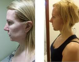 hairstyles that cover face lift scars dr sheftall plastic surgery in cambodia before after cosmetic