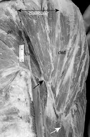 Innervation Of Infraspinatus Morphology And A Proposed Model Of Innervation Of The Human
