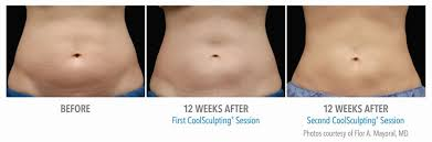 stomach muscles after c section coolsculpting procedure archives page 3 of 5 coolsculpting