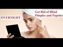 Causes Of Blind Pimples How To Get Rid Of Blind Pimples And Papules Overnight How To
