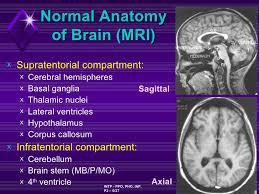 Sagittal Brain Mri Anatomy Brain Tumor