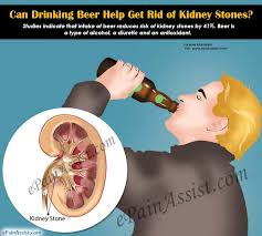 can drinking beer help get rid of kidney stones what other food