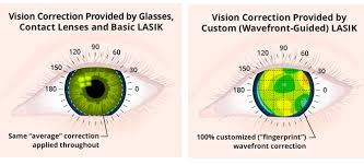 Can Lasik Cause Blindness Typical Lasik Eye Surgery Costs In Uk Clinics Laser Eye Surgery Hub