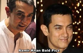 aamir khan hair transplant aamir khan hair transplant hairstyle ideas