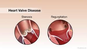 Anatomy Of Heart Valve Mitral Valve Regurgitation