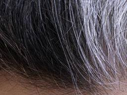 gray pubic hairs white pubic hair four possible causes