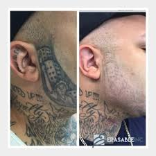 best tattoo removal in tampa fl at erasable inc erasable inc
