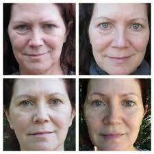 Pumpkin Enzyme Peel Before And After by Videos Beauty Blog Makeup Esthetics Beauty Tips Skincare