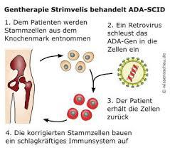 immunschwäche gentherapie strimvelis hoffnung für todkranke kinder