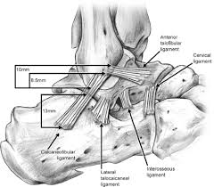 Lateral Collateral Ligament Ankle Instability Of The Ankle Musculoskeletal Key