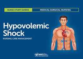 hypovolemic shock nursing care management and study guide