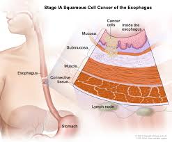Picture Of The Abdomen Organs Esophageal Cancer Treatment Pdq U0026reg Cure Today