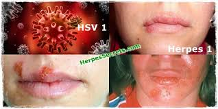 Herpetic gingivostomatitis   Wikipedia  Herpes on the other hand is caused by the HSV  or the HSV  virus