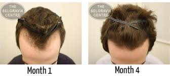 female recede hairline hairstyles with bangs receding hairline prevent and regrow a receding hairline