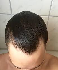 update finasteride 7 months with pics tressless