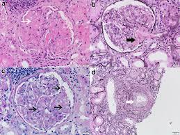 thrombotic microangiopathy associated with monoclonal gammopathy