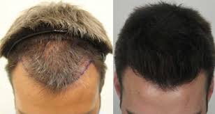 hair plugs for men am i too young for a hair transplant dr rahal