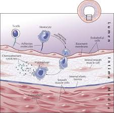 inflammation and atherothrombosis jacc journal of the american