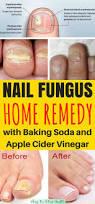 best 20 fungus in nails ideas on pinterest toenail fungus