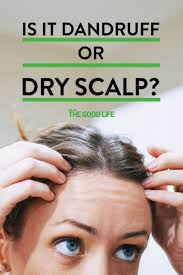 what u0027s the difference between dandruff and dry skin causes of