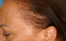 the thin hair african american thicken black hair fix thinning african american hair bwbc