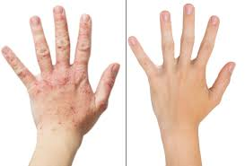 psoriasis treatment natural psoriasis treatment how pemf therapy can help
