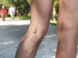 Can You Wear Compression Socks To Bed Compression Stockings For Varicose Veins Benefits And Uses