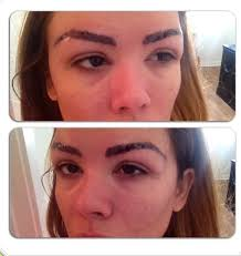Eyebrow Tattoo Before And After This Is My 1st Session Of Laser Tattoo Removal Trying To Correct