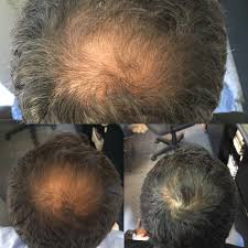 help hair shake before and after pictures for hair loss
