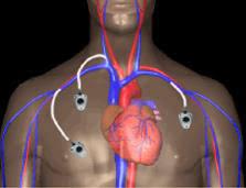 chambre à cathéter implantable bonnes pratiques d une chambre a catheter implantable