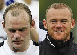 best hairtransplant in the world robbie williams and wayne rooney hair transplants the bald truth