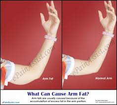 exercises to lose arm fats without weights