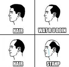 Receding Hairline Meme - scumbag receding hairline