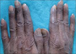nail as a window of systemic diseases singal a arora r indian