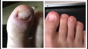 nail art top dermatologist in san antonio texas institute of