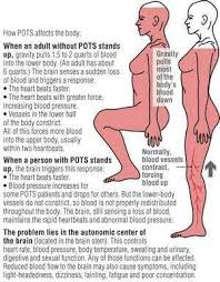Loin Human Anatomy 17 Best Images About Hypermobility Syndrome On Pinterest Raising