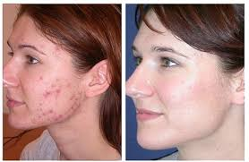 blue and red light therapy for acne redjuvenator reviews red light therapy science by expert leanne