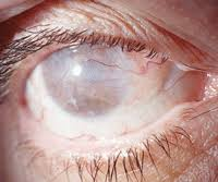 What Can Cause Blindness Gone But Not Forgotten