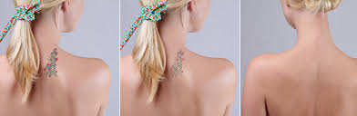 tattoo removal colorado springs the ink shrinks blog best 10