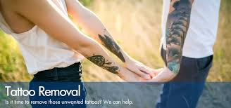 tattoo removal treatments in cardiff south wales uk